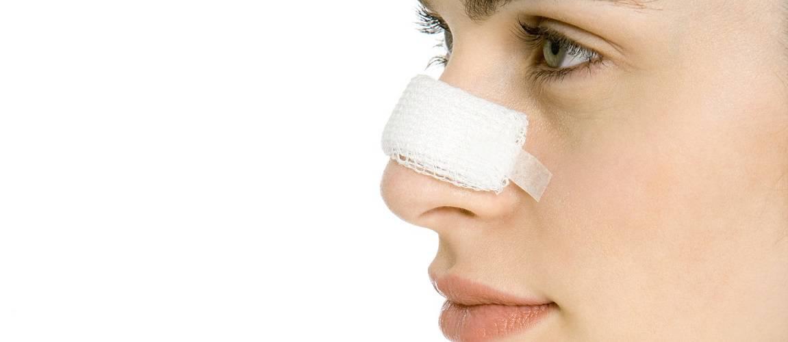 زمان بازیابی بعد از جراحی بینی