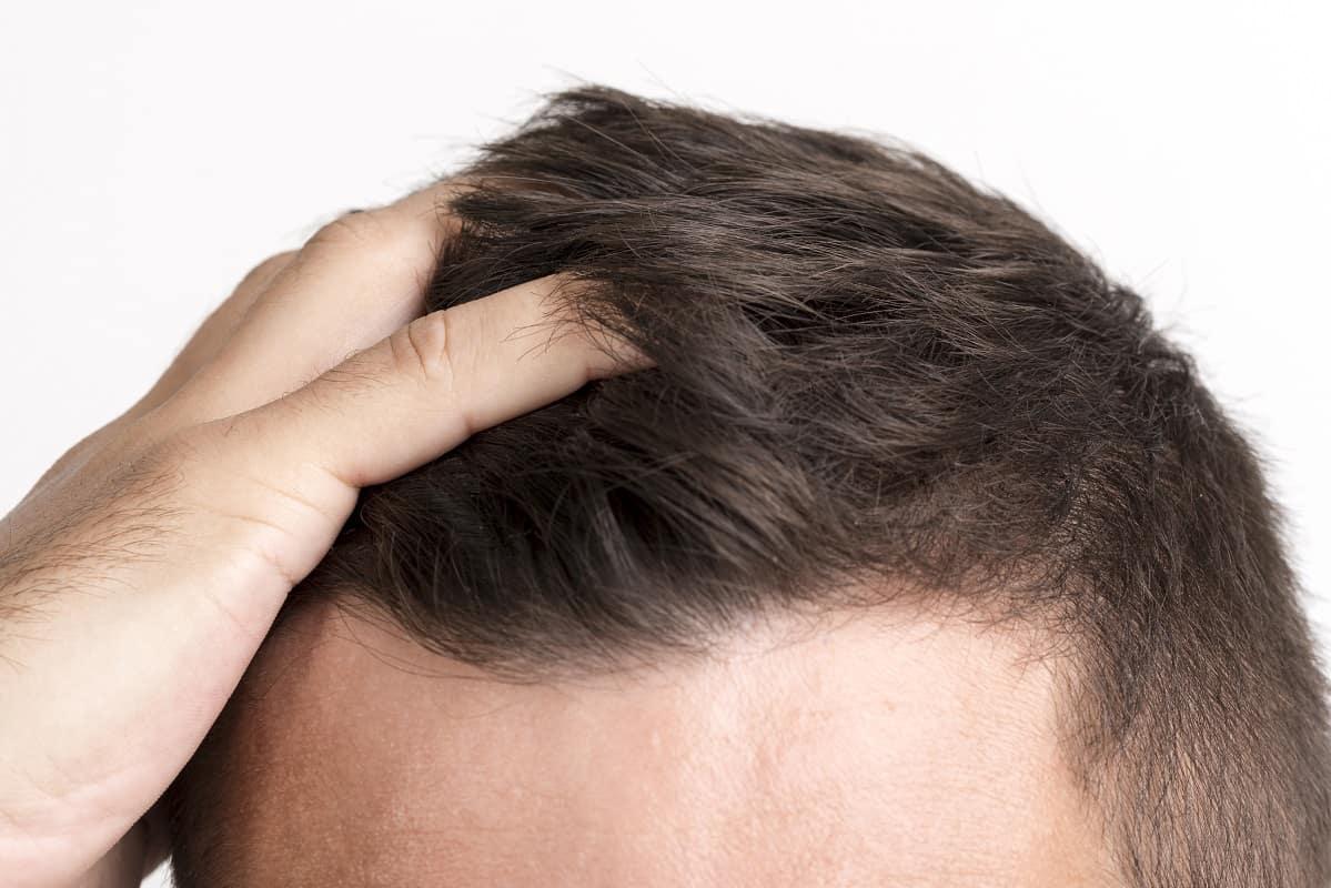 مراقبت های قبل و بعد از کاشت مو