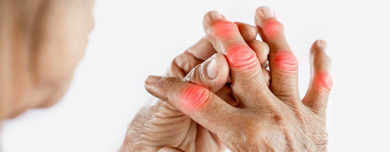 آرتریت روماتوئید (RA) چیست؟