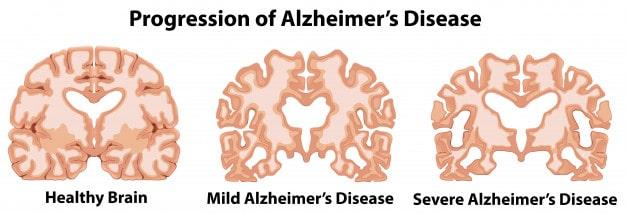 زوال عقل بیماری آلزایمر